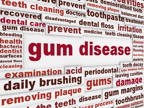 Learn more on how to prevent gum disease